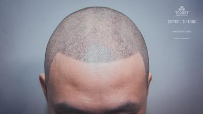 Hình xăm chân tóc - phương pháp tốt nhất khắc phục nhược điểm tóc thưa, hói