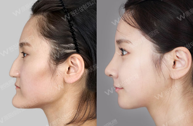 long nose surgery you may look older because of your long nose