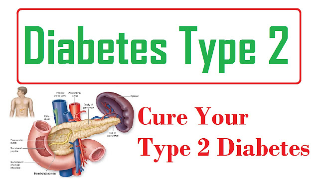 diabetes for type 2