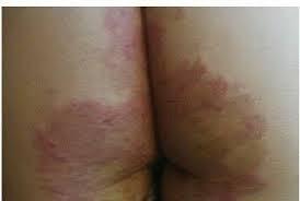 obat ampuh menghilangkan gatal selangkangan  dan pantat atau bokong