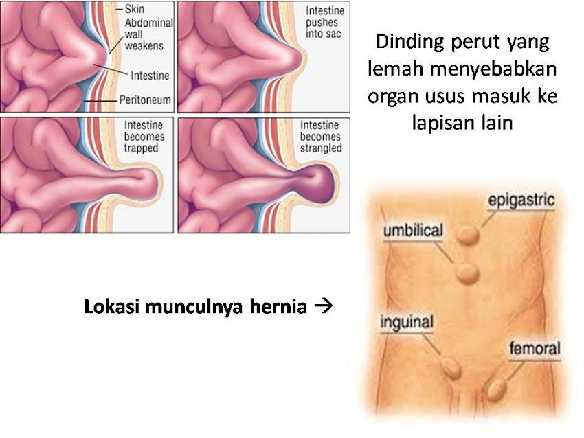 Hernia pada bayi