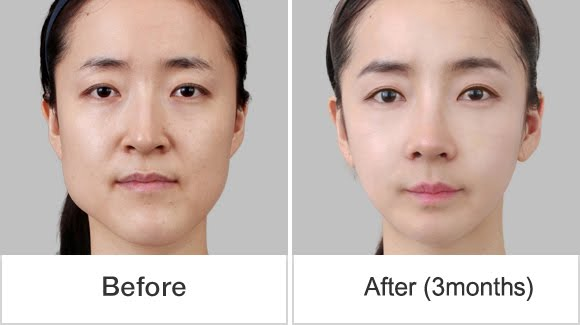 짱이뻐! - This Korean Rhinoplasty Helped Me Out from My Complex