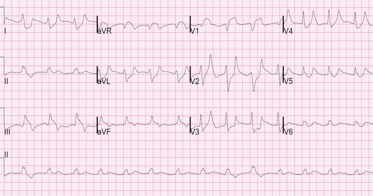 natrio chlorido vanduo ir hipertenzija kaip nustatoma hipertenzija