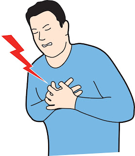 Awesome Guide for ICD 10 chest pain