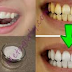 GUARANTEED! Whiten Your Yellow Teeth In Less Than 2 Minutes!