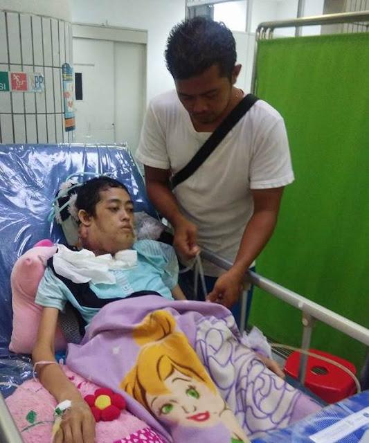 Demi Pengobatan Istrinya Yang Terkena Kanker Lidah Stadium 4, Pria Ini Rela Jual Anggota Tubuhnya