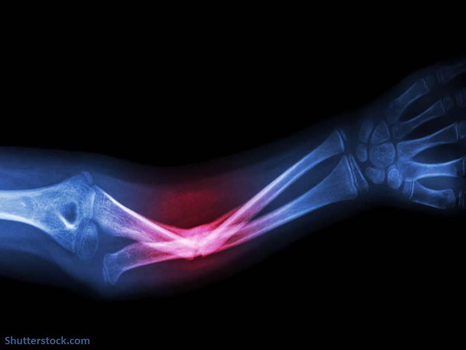 علاج عيوب و كسور العظام باستخدام الطباعة ثلاثية الأبعاد !
