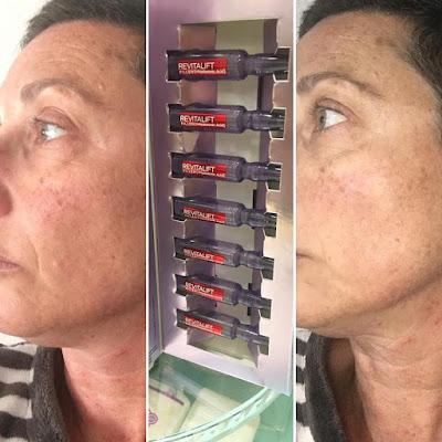 AMPOLLAS REVITALIF FILLER  + ácido Hialurónico 7 días.  L'oréal Paris