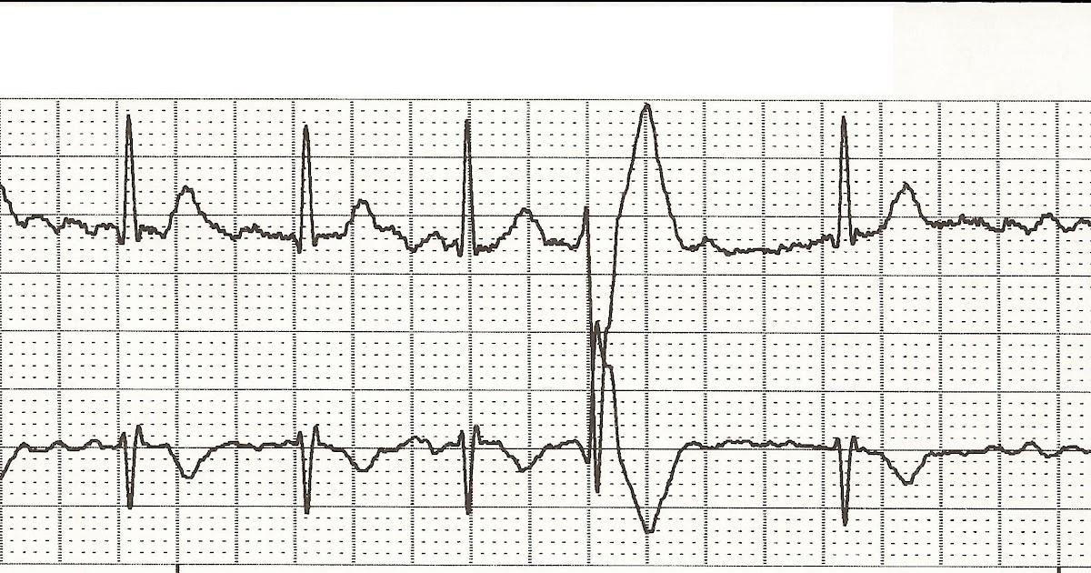 Float Nurse: EKG Rhythm Strips 57