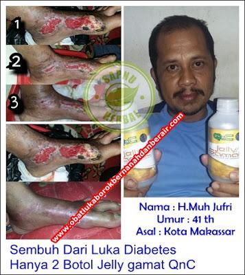 Obat Herpes Di Leher Tradisional Terampuh & TERBUKTI MANJUR!!