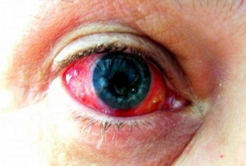 Αίμα στο μάτι! Πότε πρέπει να ανησυχήσετε όταν υπάρχει κοκκίνισμα;