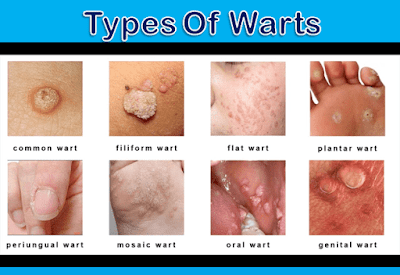 Human Papillomavirus (hpv) In Men WARTS: EMBARRAS...