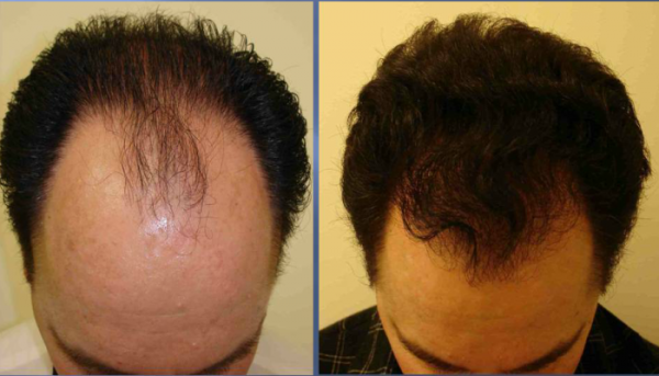 Everyone Speaks About This Natural Hair Growth Serum: The Results Are Visible After Only Few Uses