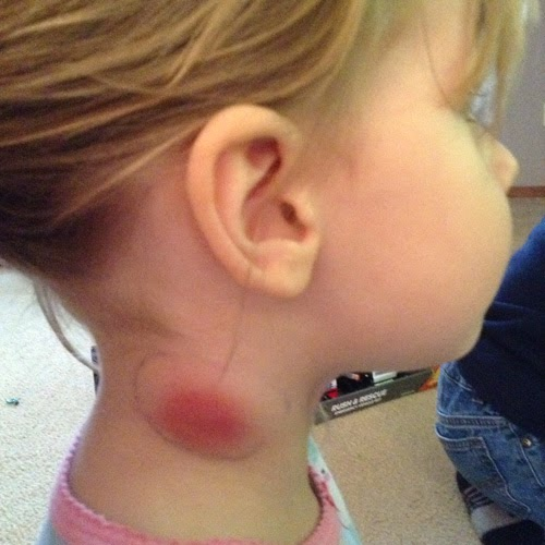 My Daughter's Battle With MRSA