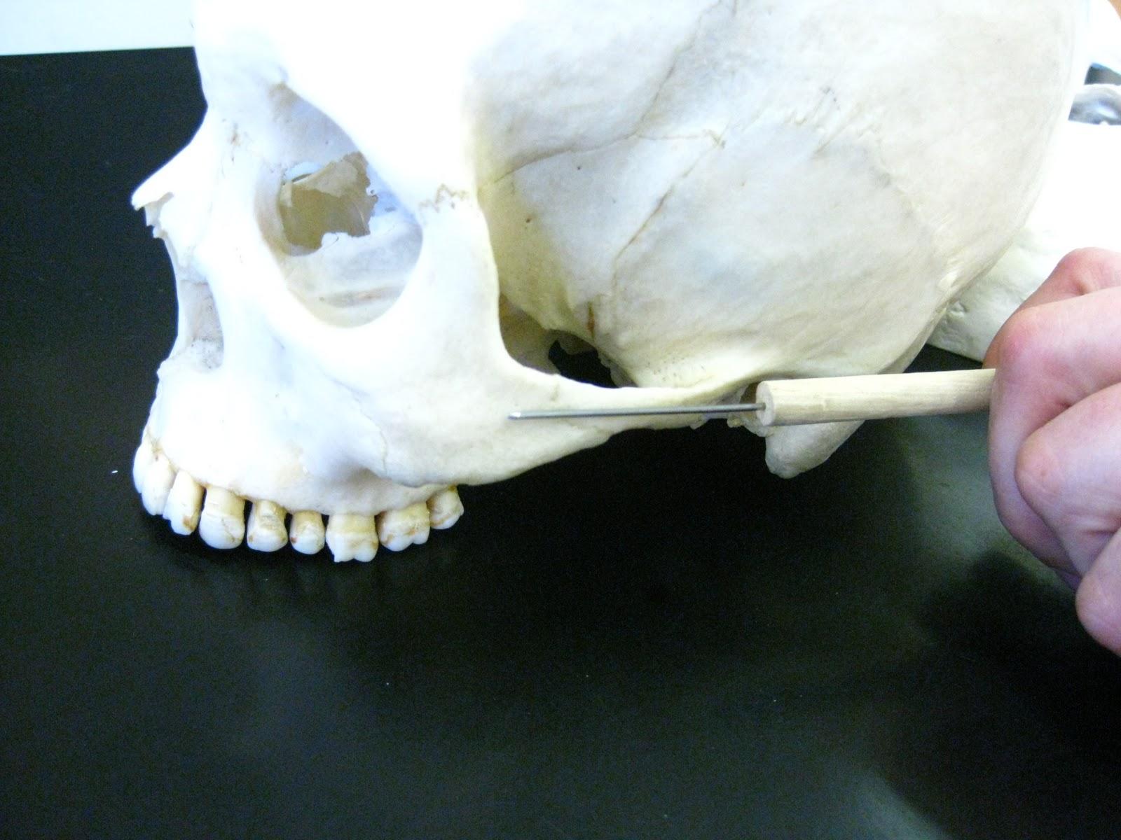 Boned: Human Skull - zygomatic arch (union of zygomatic ...