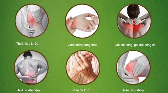 Các dạng đau nhức xương khớp thường gặp
