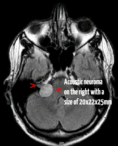 small tumor of acoustic neuroma