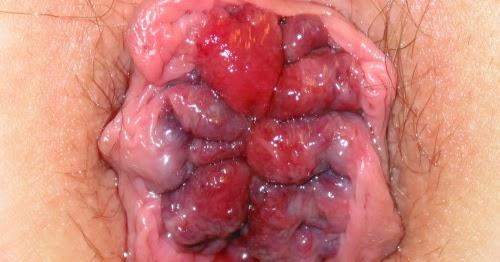 How Do U Get Rid Of Hemorrhoids Naturally