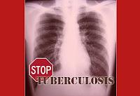 cara menyembuhkan TBC paru / tuberkulosis