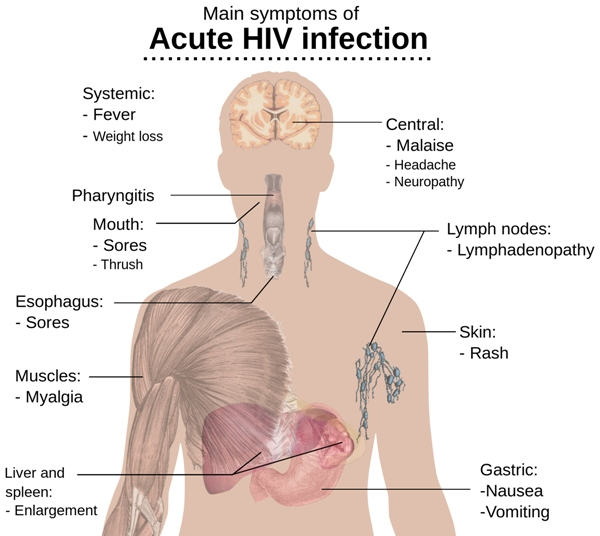 Main Symptoms of Acute HIV infection