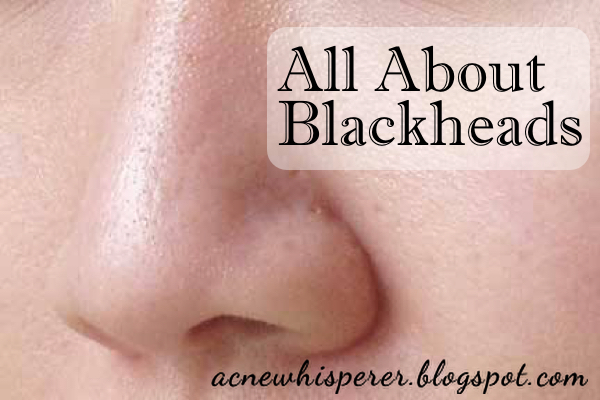 Blackheads do not mean you have a dirty face.  Blackheads are dark because of oxidized oil and dead cells.  Find out all about it on the Acne Whisperer Blog.