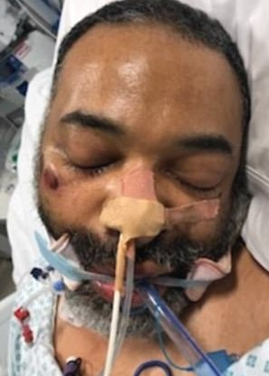 Police desperately try to trace family of mystery man who had a heart attack and is in an induced coma