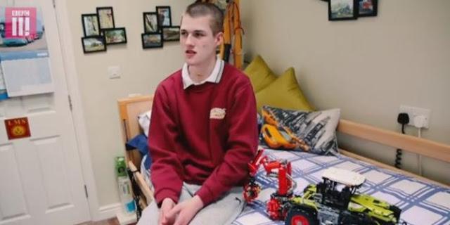 Menderita Penyakit Langka, Remaja ini Tak Bernafas Saat Tidur