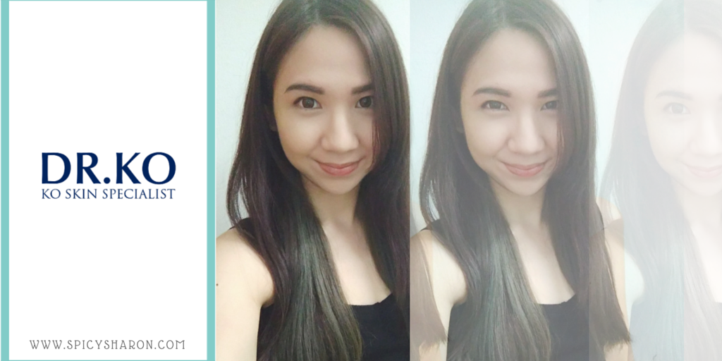 Acne Facial And Laser Treatment Review @ KO Skin Specialist