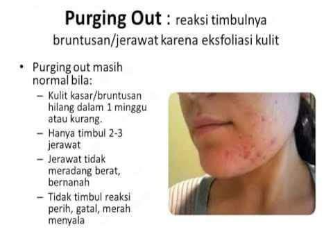 Tempat FacialPria di Sukun, Kota Malang WA: 08112338376