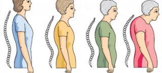 Pengertian Dan Gejala Osteoporosis