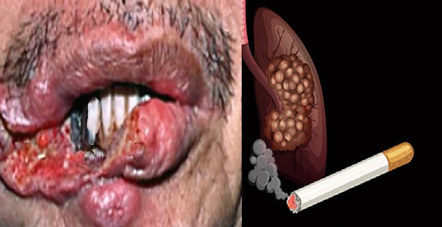 Mouth and Lung Cancer