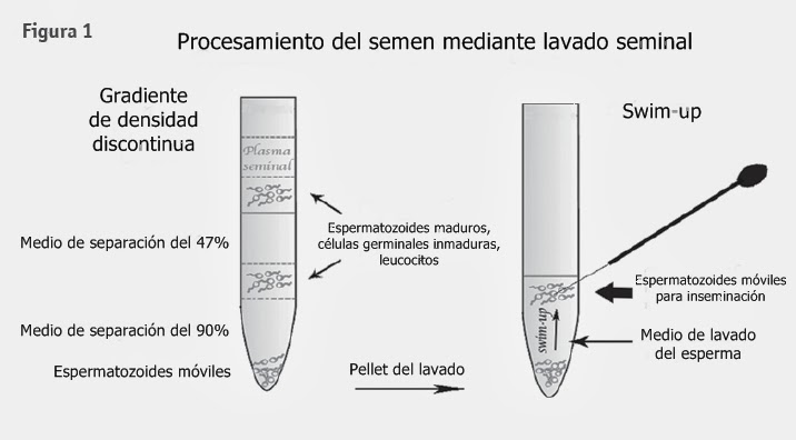 Espermatozoides in vitro: Lavado seminal como alternativa de ...