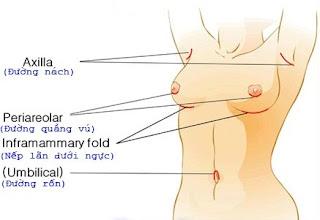 nâng ngực nội soi có để lại sẹo không