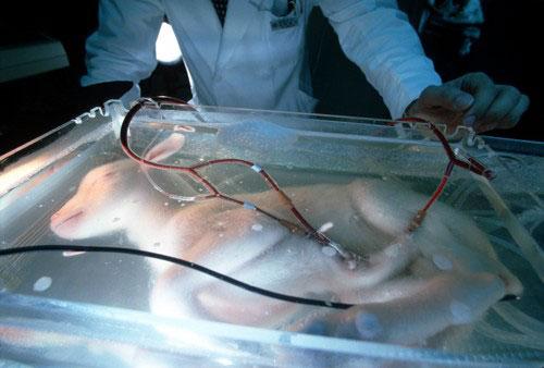 ciąża in vitro