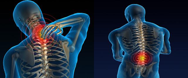 Mal di schiena: curarlo e prevenirlo