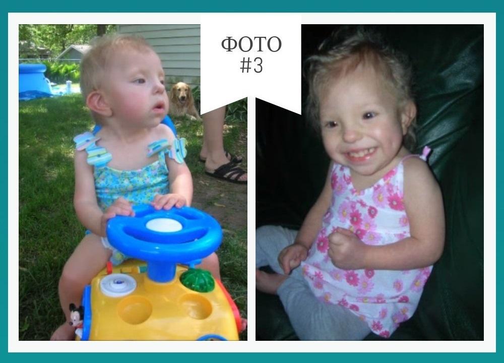 синдром орбели у ребенка фото