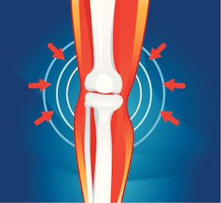 Kesehatan tulang: Tips untuk menjaga tulang Anda sehat