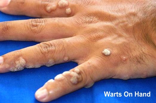 Common Warts On Hand