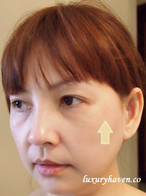 aesthetic clinic copper bromide treatment melasma