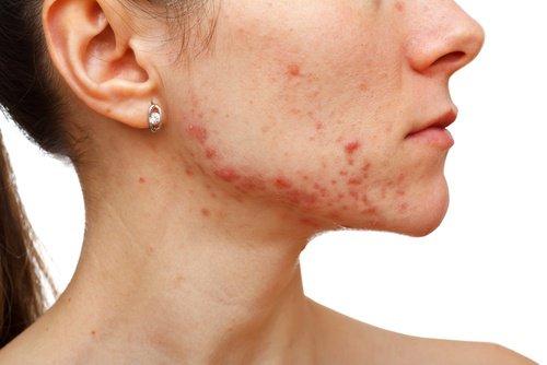 Diminuer l'acné