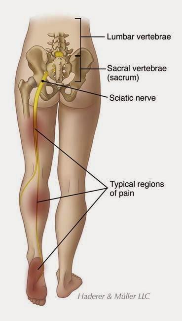 il tessuto scsr nellutero può causare dolore pelvico cronico