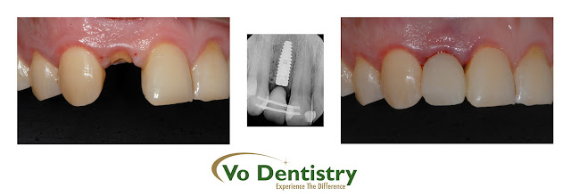 Immediate Implant, dental implant, inplants, Cosmetic Dentistry, same day implant, same day crown, Lawrenceville, Norcross, Lilburn, Dacula, buford, duluth, snellville, hamilton mill, grayson, sugar hill, sugar loaf, GA, Georgia, 30019, 30044, 30045