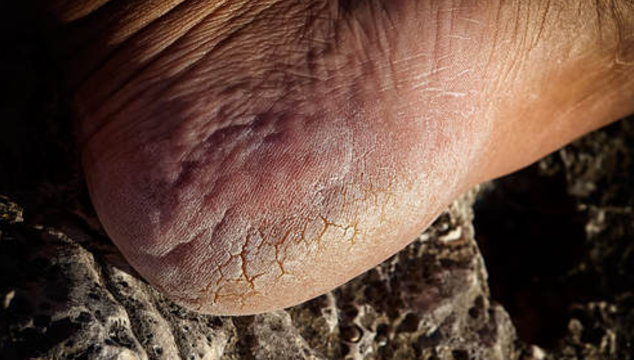 Effective home remedies for cracked heel