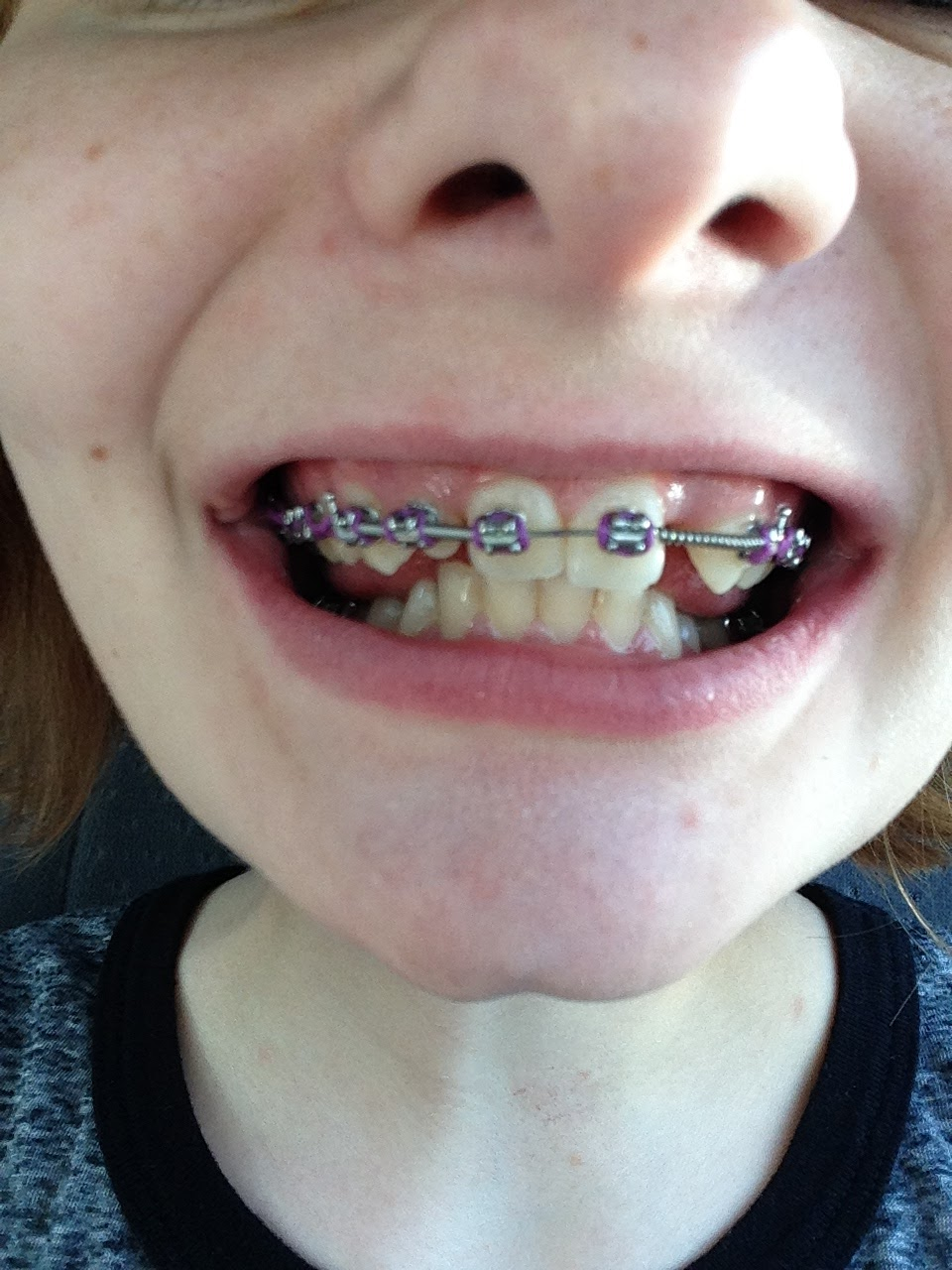 Jaw Surgery Experience and Recovery : Introduction