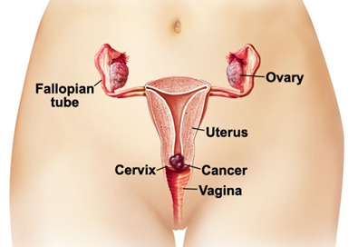 prevention of cancer of uterus cervical cancer Cervical cancer is a cancer that starts in the cervix the cervix is the lower part of the uterus (womb) that opens at the top of the vagina there is a lot you can do to decrease your chance of having cervical cancer.