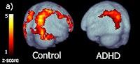Apa Itu ADHD (Attention Deficit Hyperactivity Disorder)?