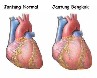 Obat jantung bengkak yang alami