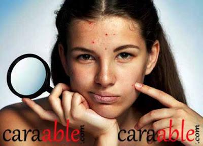 Cara merawat wjah berjerawat dengan benar dan juga cara merawat wajah agar tidak kusam untuk pria dan wanita berdasarkan artikel kesehatan