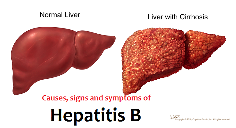The hepatitis B disease and prevention methods ...