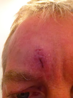 Painful-faces-husband-scar-injury-stitches